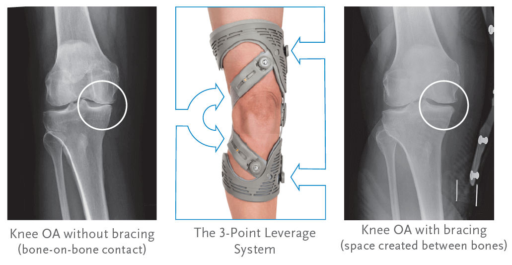 3fe081f131 Unloader knee braces unload the affected, painful side of the knee using a  3-Point Leverage System. The thigh and calf shells account for two points  of ...